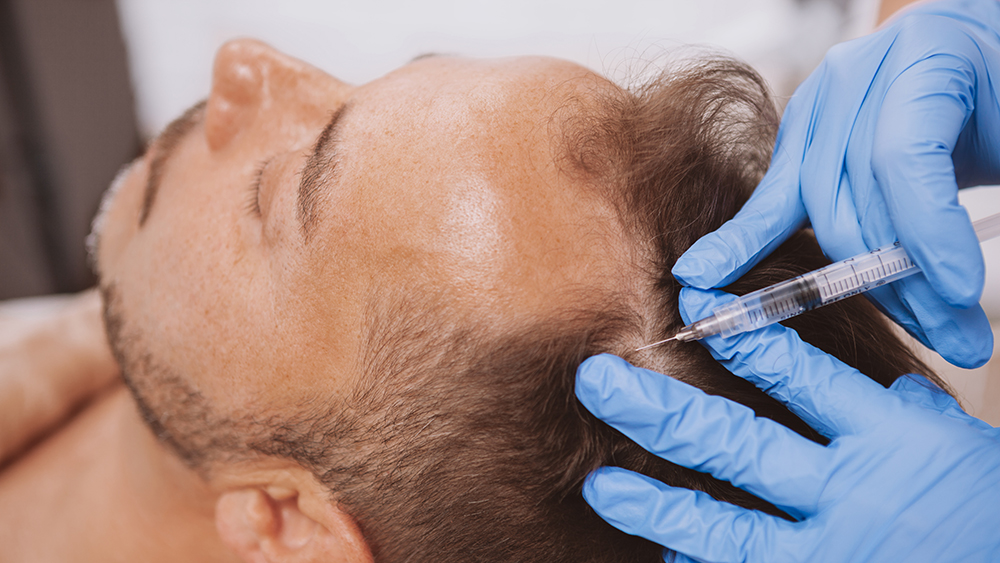 Close up of a mature man receiving hairloss treatment injections in scalp by professional trichologist. Dermatologist doing scalp injections for mature male client with alopecia problem